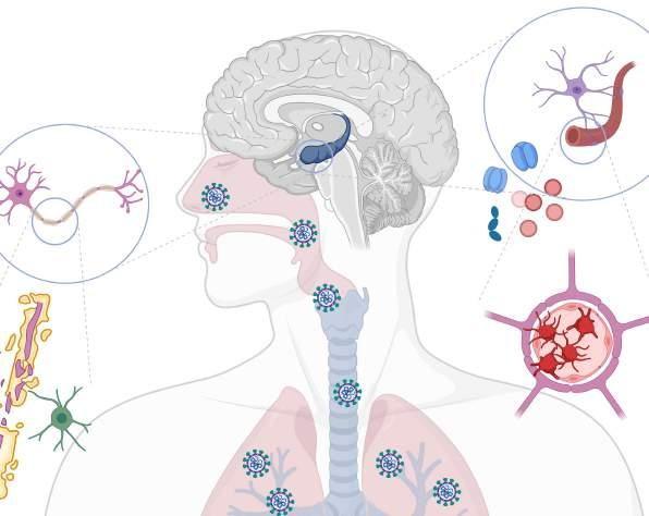 Manual COVID-19 para neurólogos